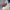 Aşı olmayan hamile kadın ölümden döndü